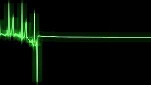 Hoạt động của sóng não trước khi chết    Ảnh: BBC