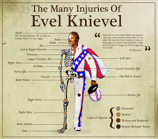 The-Many-Injuries-Of-Evel-Knievel-137750