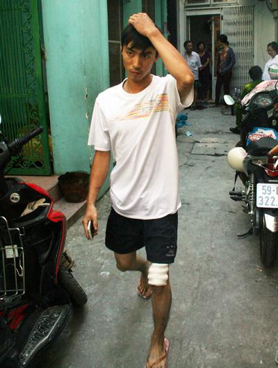 Một người tham gia cứu nhóm sinh viên thoát khỏi nhà bị cháy bị thương nhẹ ở gối chân. Ảnh: An Nhn