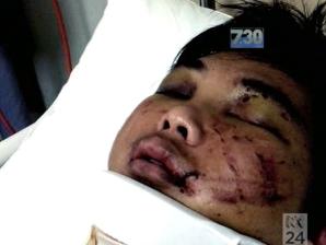 Du học sinh Việt bị hành hung thỉnh cầu bộ trưởng Australia