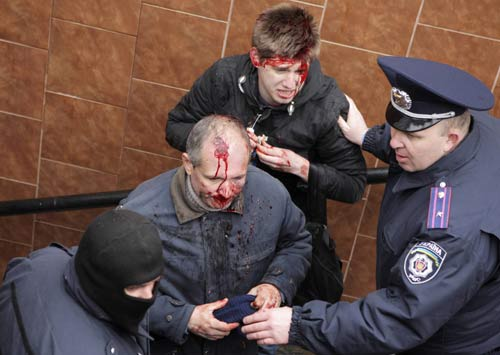 [Caption]Interior Ministry members stand near men, who were injured in clashes between pro-Russian and pro-Ukrainian supporters during their rallies, in Kharkiv, April 13, 2014. REUTERS