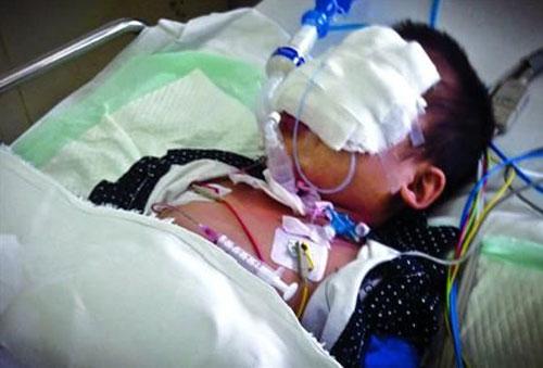Bé trai Trung Quốc bị gần 90 đầu đạn găm vào mặt