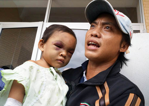Nam thanh niên đến nhận là cha ruột cháu bé bị đánh biến dạng