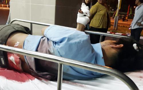 Anh Tuấn bị chém đứt lìa ngón tay và nhiều vết thương ở lưng, đầu. Ảnh: Xuân Mai