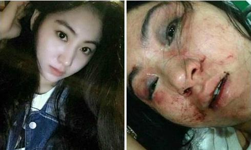 Ca sĩ bị đánh dập mặt vì không chịu tiếp khách gây bão mạng xã hội