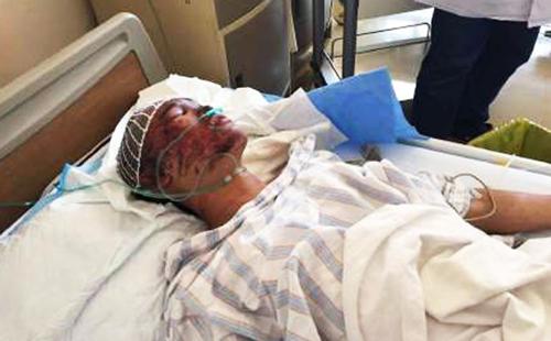 Zhou Ti bị bỏng ở mặt và hiện được điều trị tại bệnh viện. SCMP.