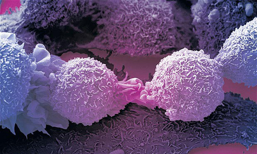 cancer1-2130923b-1787-1440476273.jpg