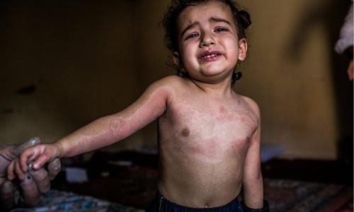 IS bắn đạn pháo chứa hóa chất, hủy hoại nội tạng nạn nhân 1