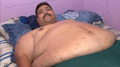Người béo nhất thế giới cắt dạ dày để giảm cân - ảnh 1