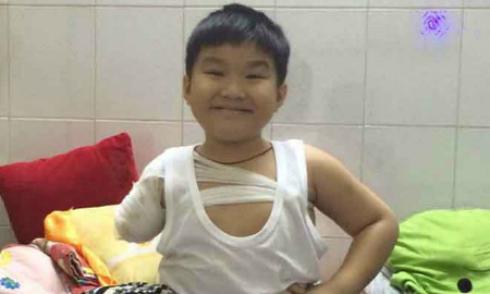 Nụ cười lạc quan của cậu bé 6 tuổi bị cán đứt lìa tay