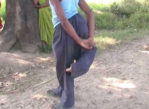 """Đôi chân thừa của người anh em song sinh không phát triển hoàn thiện đã """"sống"""" của Rajput 20 năm. Ảnh: Caters"""