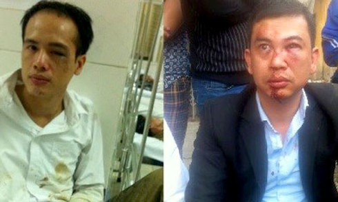Nhóm hành hung hai luật sư vì 'bắn bụi bẩn' bị khởi tố