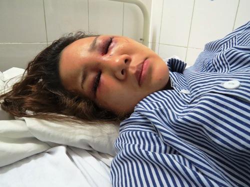 Thiếu úy công an bị tố đánh bạn gái nhập viện vì khước từ tình cảm