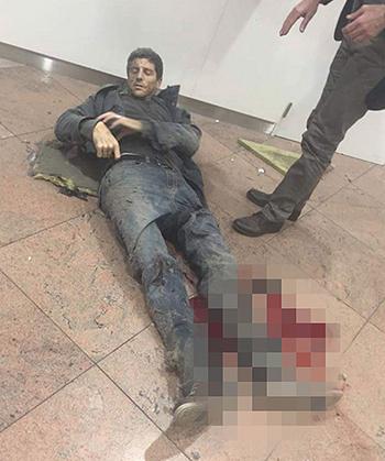 Một hành khách bị thương nằm trên sàn sân bay. Ảnh: Telegraph