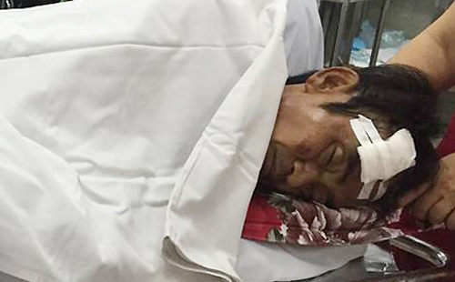 Ông Huỳnh Văn Nén bị chấn thương sọ não vì tai nạn giao thông