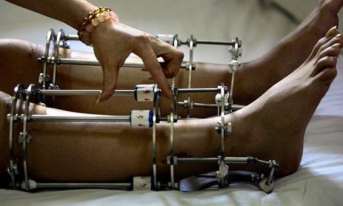 Khát vọng kéo chân dài của thanh niên Ấn Độ - ảnh 1