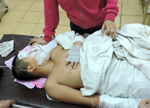 Nổ bình gas trong giờ thi nấu ăn, 5 học sinh bị bỏng 2