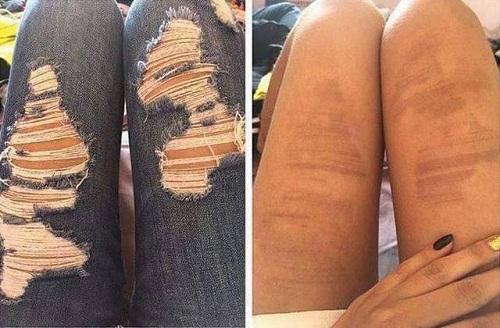 Hậu quả khi diệnmốt quần jean rách vào ngày hè.