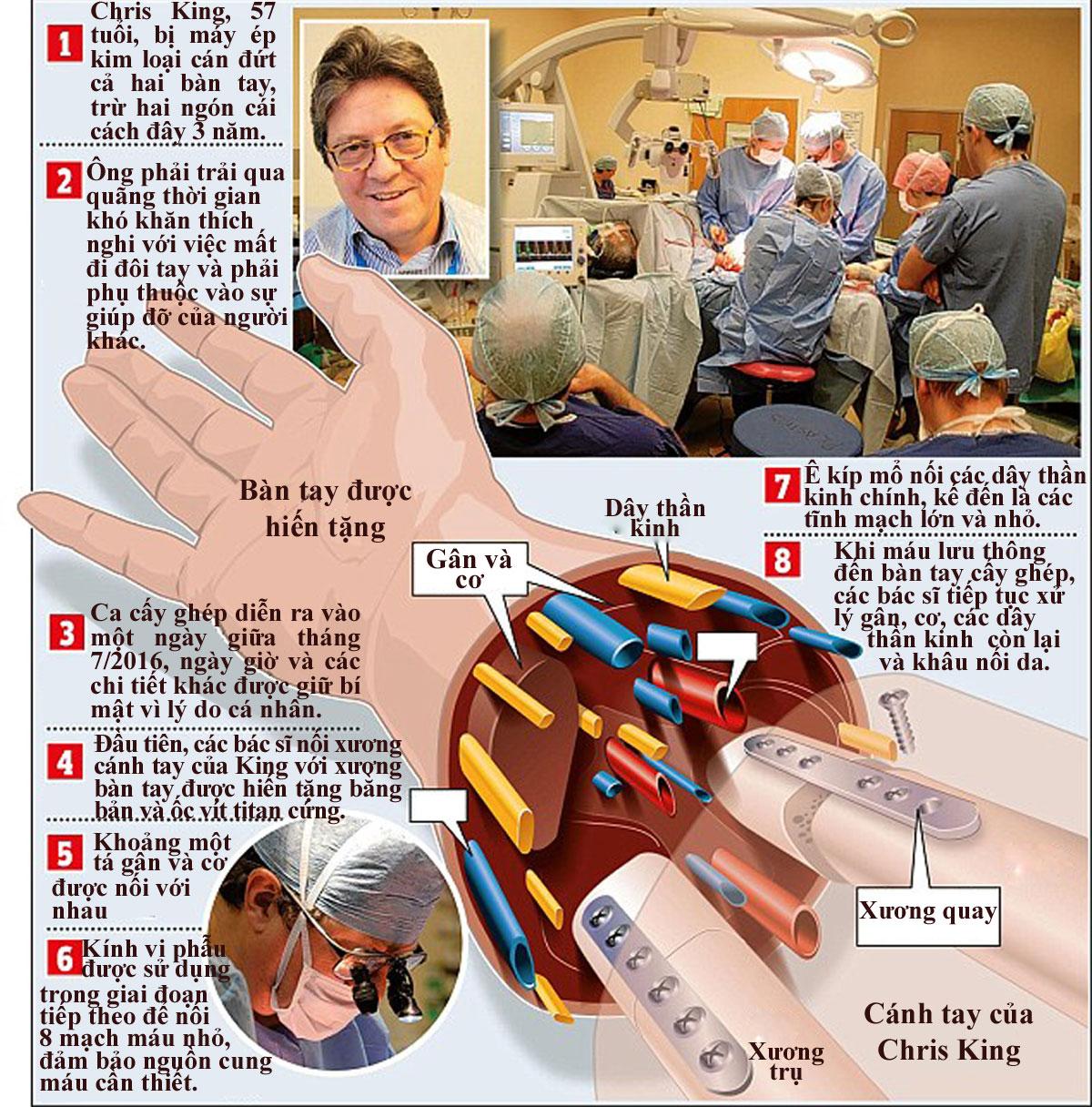 Ca cấy ghép hai bàn tay ở Anh diễn ra thế nào