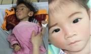 Bé gái suy dinh dưỡng vì ăn nước cơm đã lột xác thành thiên thần