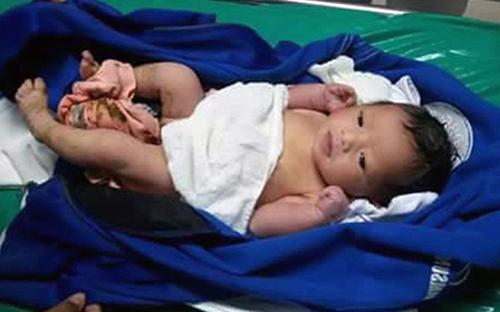 Bé gái được tìm thấy trong một thùng ráctại khu nghỉ dưỡngPatong trên đảo Phuket.