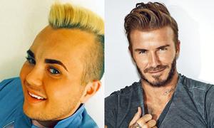 Anh chàng thất nghiệp chi 26.000 đô để phẫu thuật thành Beckham