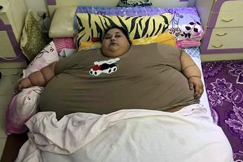Iman Ahmad Abdulati được cho là phụ nữ béo nhất thế giới. Ảnh: CEN