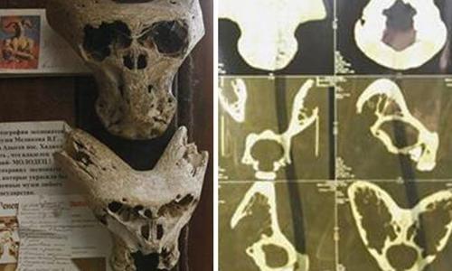 Những chiếc đầu lâu hình dáng lạ ở Adygea, miền nam Nga. Ảnh: Daily Star.