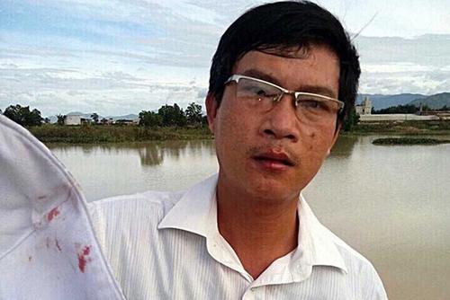Ông Hoàng Trung Thành, Phó Chủ tịch UBND xã Gia An, huyện Tánh Linh (Bình Thuận), bị đánh dập môi, khẩu trang dính máu. Ảnh: PN