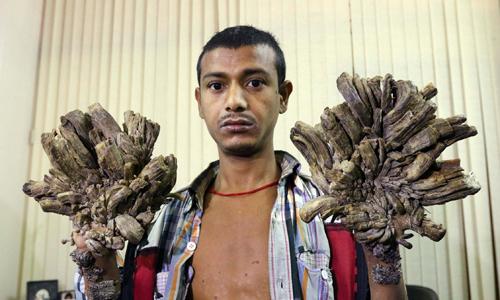 Abul Bajandar được gọi là người cây. Ảnh: Mirror