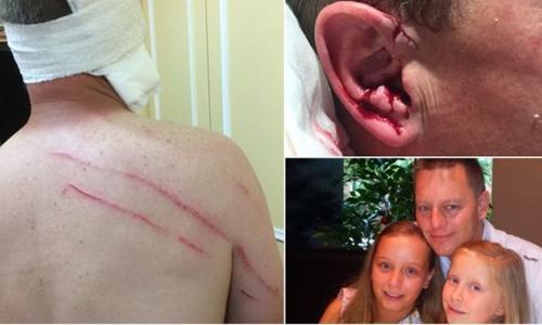 Matthew Chenhall đã chịu nhiều vết thương để bảo vệ hai con gái. Ảnh: Milton Ulladulla Times