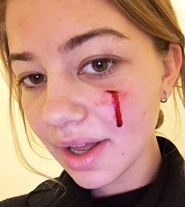 Cô gái bị chú chó Sunny cắn vào mặt. Ảnh: TMZ.
