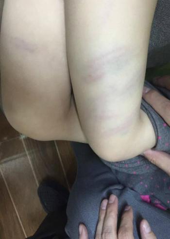 Nữ giáo viên đánh bầm tím bé 27 tháng tuổi do bé quấy khóc - ảnh 1