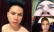 Ca sĩ Hoàng Tôn cầu cứu vì mặt biến dạng sau phẫu thuật thẩm mỹ