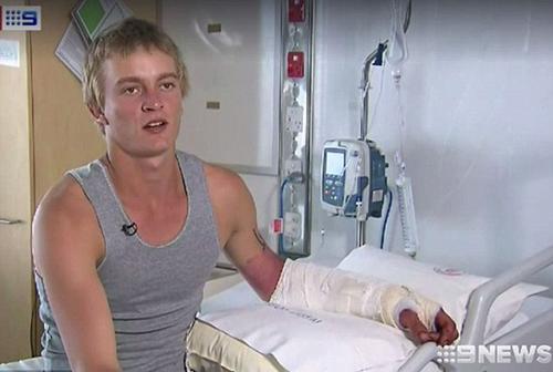 Chàng trai Australia không hối hận vì nhảy xuống sông cá sấu để gây ấn tượng với bạn gái - ảnh 1