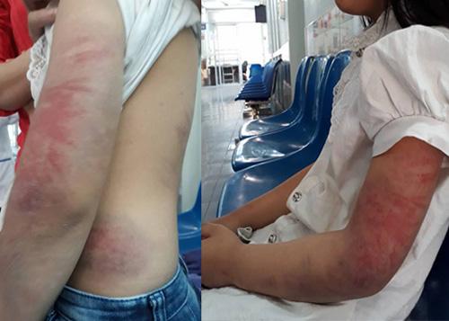 Bé gái bị bố say rượu đánh bầm tím thân thể
