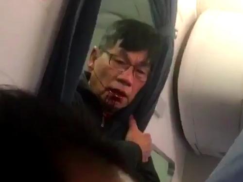 Bác sĩ David Dao trong tình trạng thương tích trên máy bay