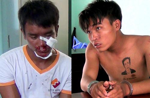 Hai kẻ cướp bị thương sau cú đạp của cô gái. Ảnh: Nguyệt Triều