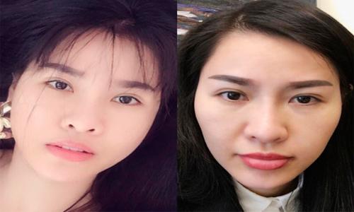 que-van-cong-khai-qua-trinh-sua-toan-bo-khuon-mat