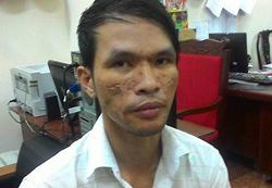 Kẻ hành hạ bé 3 tuổi bị Campuchia phạt 18 năm tù