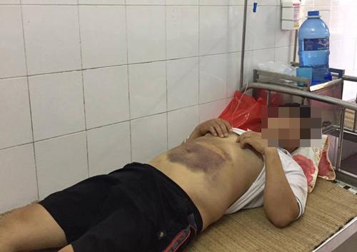 Người đàn ông bầm tím khắp cơ thể sau một đêm ở trụ sở công an