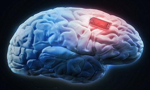 Các điện cực siêu nhỏ có thể được cấy ghép vào não để giúp bạn có trí tuệ siêu phàm. Ảnh: iStock.