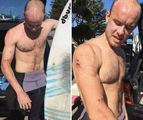 Charlie Fry bị thương ở vai phải sau khi bị cá mập tấn công. Ảnh: The Sun