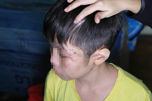 Cuộc sống đọa đầy của bé trai 10 tuổi khi ở cùng bố và mẹ kế: Bị bố đánh rạn xương sườn, nứt sọ não