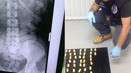 Máy quét an ninh cho thấy có hơn 60 gói nhỏ trong bụng của cô này, chứa 1,2 kg cocaine,