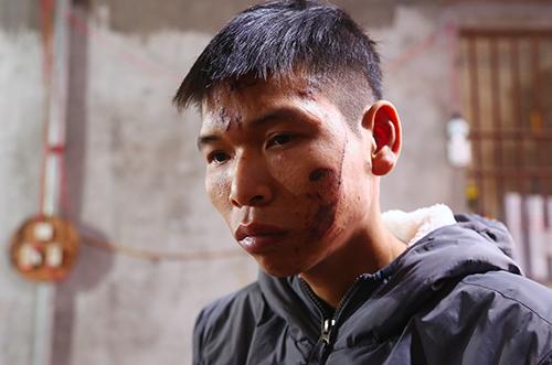 Anh Đặng Đình Tiến thẫn thờ khi mất nhà, mất con. Ảnh: Phạm Dự.