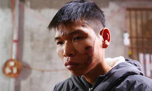 Nỗi khiếp sợ của nạn nhân vụ nổ ở Bắc Ninh