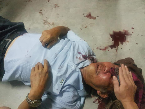 Ông Quang mặt bê bết máu sau khi bị hành hung. Ảnh: Nạn nhân cung cấp