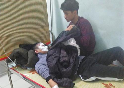 Vinh bị bỏng mặt, đang điều trị tại bệnh viện. Ảnh: Đ.H