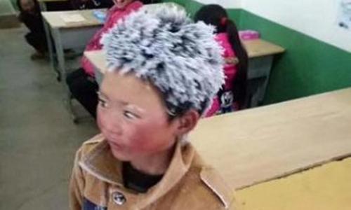 Cậu bé tóc đóng băng ở Trung Quốc được hỗ trợ hàng triệu đô